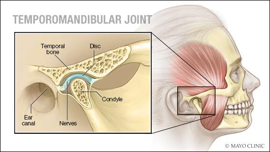Evaluation of effects of melatonin on temporomandibular joint (TMJ) internal derangements and myofacial pain